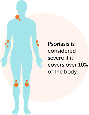 Psoriasis is considered severe if it covers over 10% of the body.